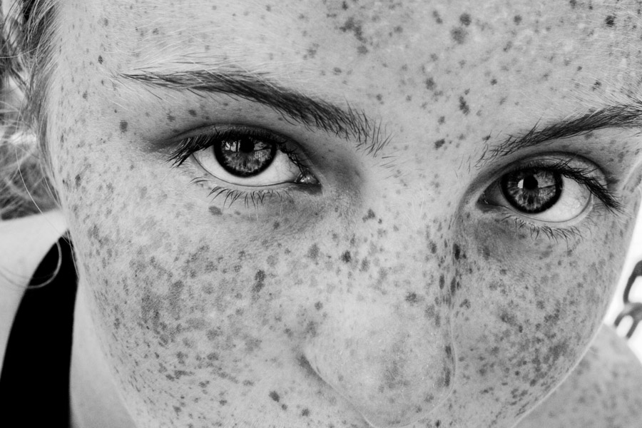 freckle project-10.jpg