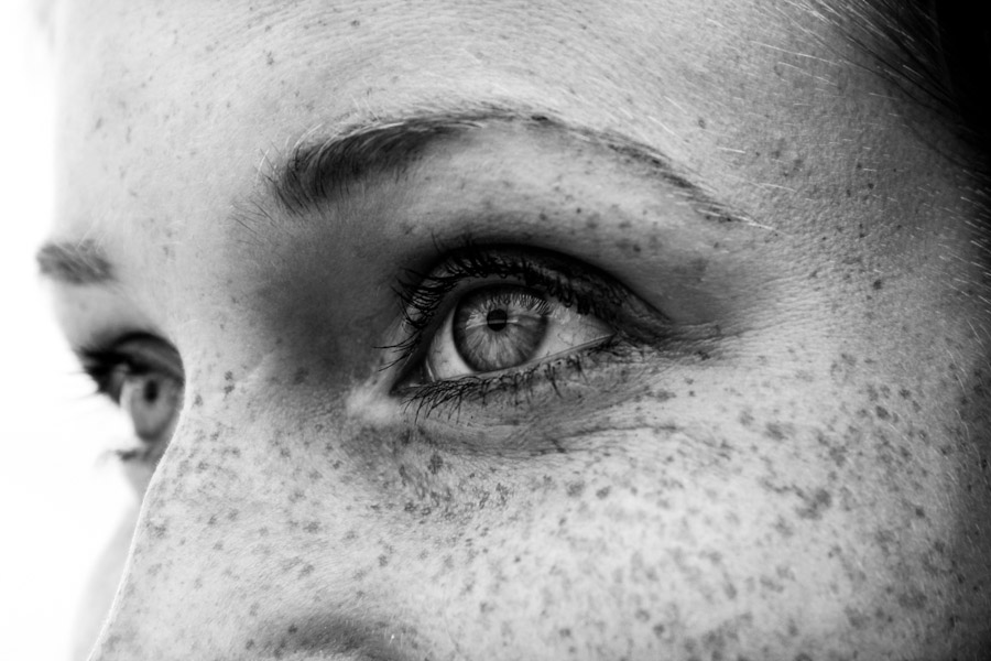 freckle project-17.jpg