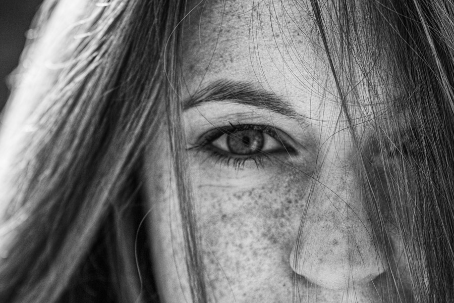 freckle project-20.jpg