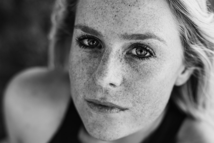 freckle project-28.jpg