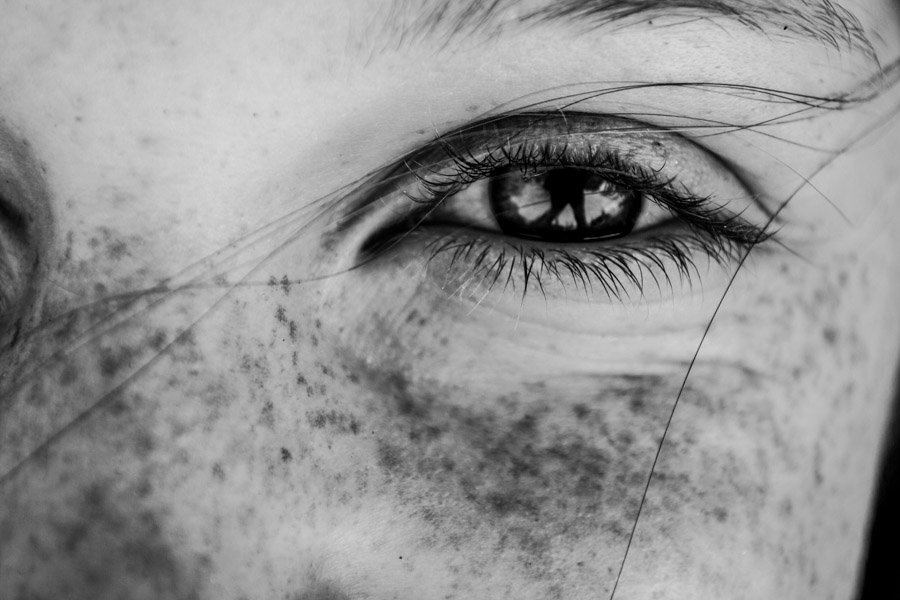 freckle project-6.jpg