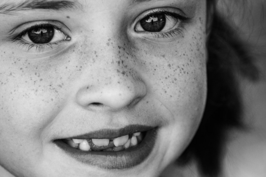 freckle project-7.jpg